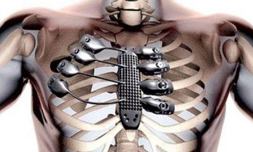Nghiên cứu chế tạo hợp kim titan y sinh cấy ghép  trong cơ thể người